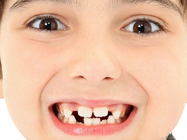 Mơ thấy rụng răng đánh con gì, báo mộng điềm gì?